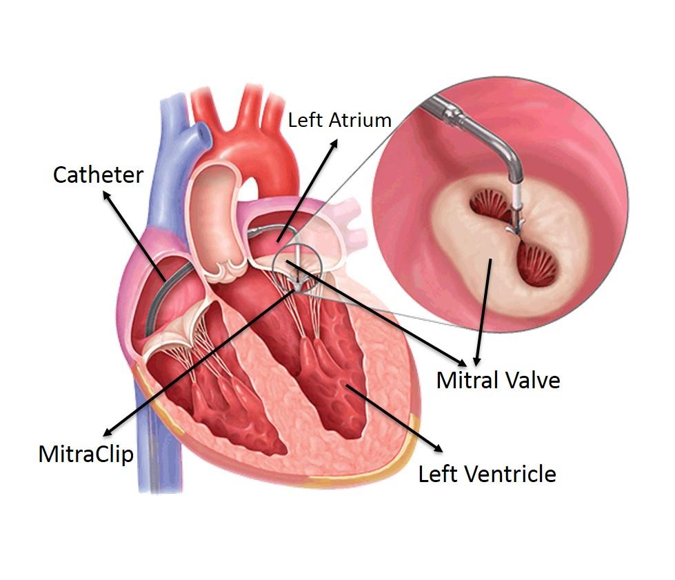 Heart valve repair without open heart surgery