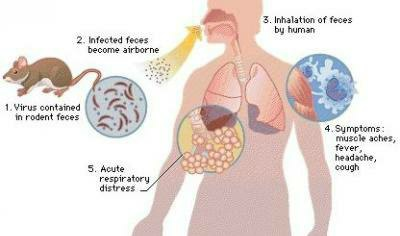 hantavirus anxiety, how common is hantavirus, hantavirus test cost, hantavirus prevention hantavirus map, hantavirus treatment, hantavirus transmission, hantavirus test, hantavirus treatment hindi, hantavirus treatment UK, hantavirus treatment Canada, hantavirus treatment Ribavirin, hantavirus treatment Prognosis, hantavirus treatment and Symptoms, hantavirus natural treatment , hantavirus antiviral treatment