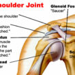 Two Stage Procedure treats complicated Arthritic Shoulder: Mohali, September 18, 2020