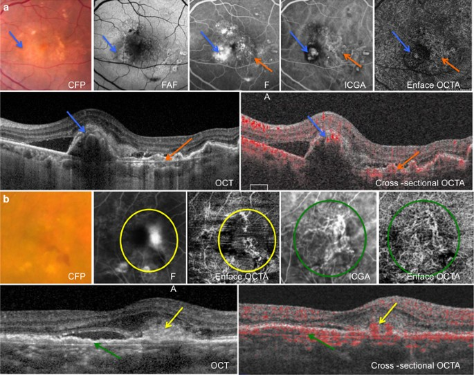 Novel Invasive OCT Imaging Makes Evaluation Easier